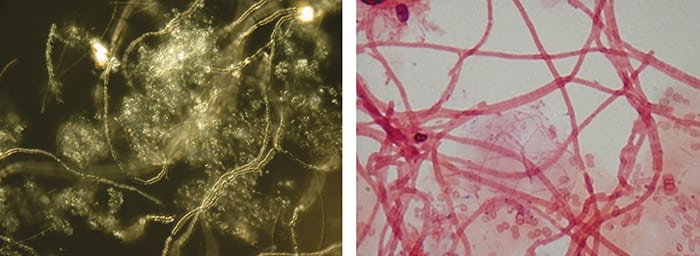 Figure 2.  Microscopic filaments of Nostocoida limicola appeared in the activated sludge (both images have magnification of 400x). In the photograph right, the filaments show up clearly after a staining reaction. The hazy, fluffy-looking clouds are the slimy biopolymers (EPS) produced by the conventional micro-organisms